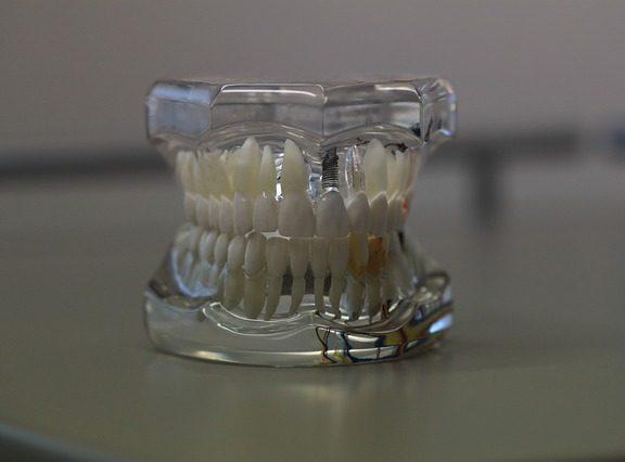 Oferta implanturi dentare